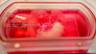 Mini hígados humanos genéticamente modificados y cultivados en el laboratorio