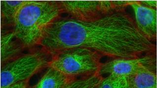 Algoritmo que evita la identificación errónea de células cancerosas